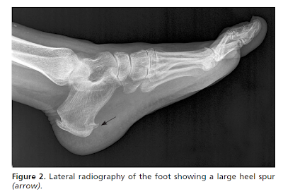 x-ray depicting large heel spur