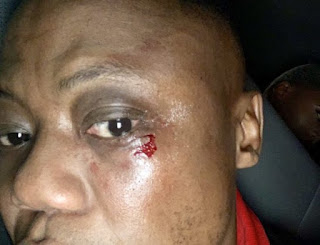 Watch: DJ Tira Hit With A Bottle Of Beer While Performing