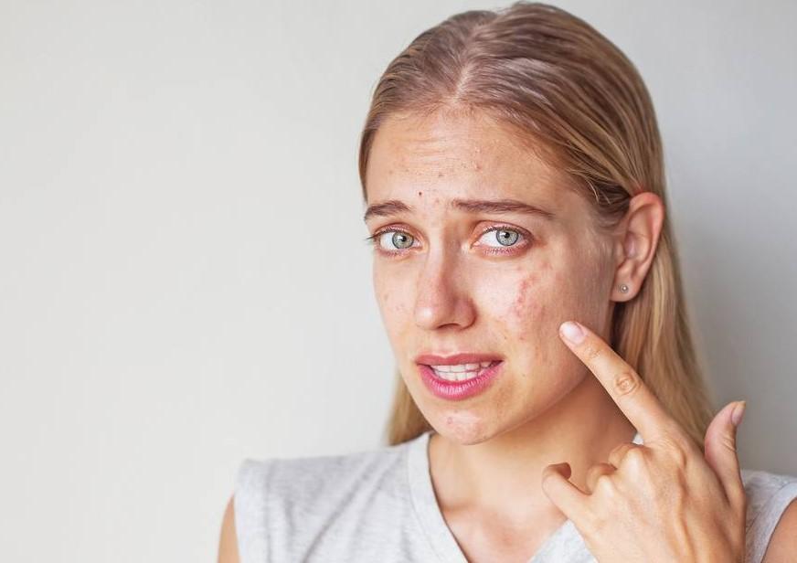 Menghilangkan Flek Hitam di Wajah yang Membandel