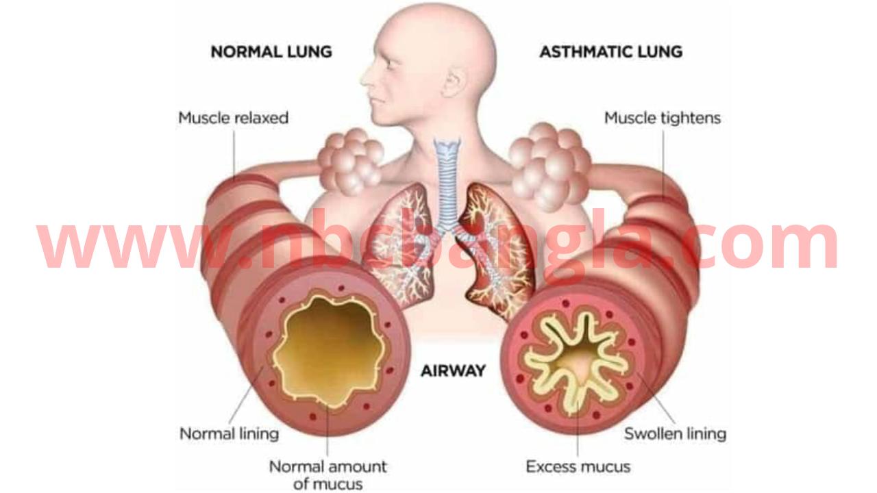 অ্যাজমা শ্বাসকষ্ট বা হাপানী রোগের উপসর্গ কারণ প্রতিকার,asthma,asthma attack,asthma treatment,asthma (disease or medical condition),asthma symptoms,symptoms of asthma,severe asthma,types of asthma,causes of asthma,asthma and allergy foundation of america,pathophysiology of asthma,asthma pathophysiology,asthma lecture,tips to reduce allergy & asthma symptoms,asthma symptoms in children,asthma symtoms,management of asthma,asthma remedy,yoga therapy for asthma,anatomy of asthma,asthma triggers,asthma inhalers,treatment of asthma,asthma pathology,Remedy for asthma or symptoms of asthma