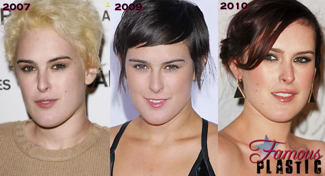 Rumer Willis Plastic Surgery Before And After Breast