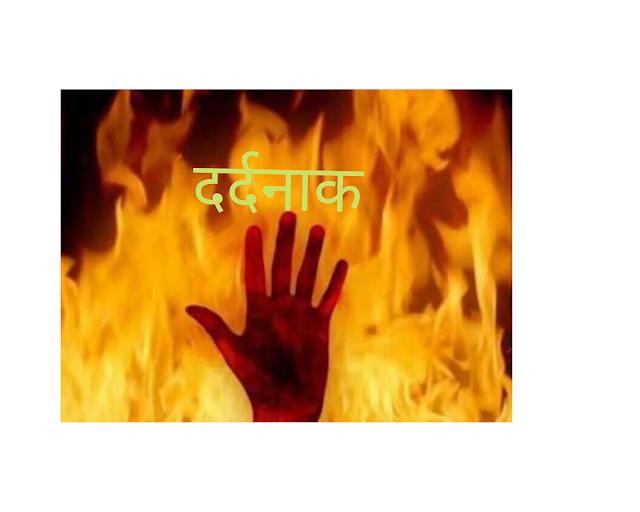 27 वर्षीय महिला खाना बनाते समय आग में झुलसी, हालत गंभीर