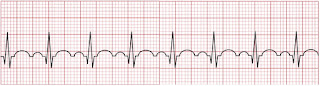 An ECG of a sinus tachycardia.