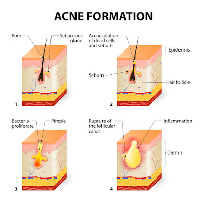 acne information