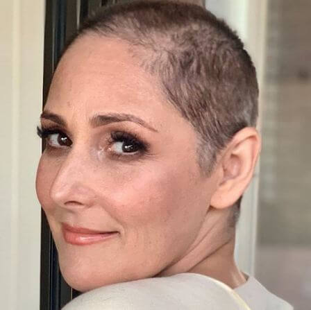 Gail Porter,sporting,a bald,head now