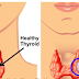 How To Easily Check If You Have Thyroid Disease