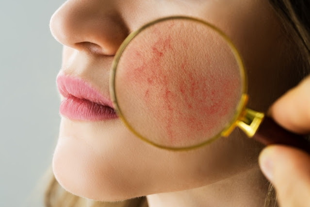 Rosacea Increases the Risk of Cardiovascular Disease