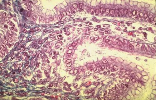 tissu conjonctif lâche