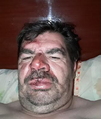 Blogueiro João Moacir sofre acidente de moto