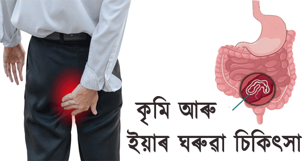 Intestinal worms Symptoms and its home treatment