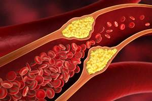 Obat Kolesterol Generik