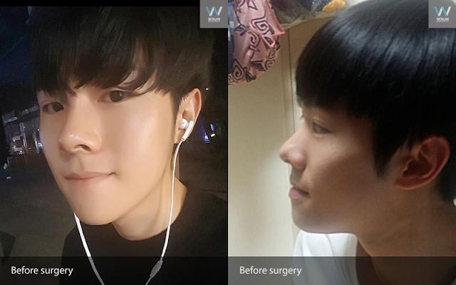 짱이뻐! - Diary Of The Best Two Jaw Surgery In Korea
