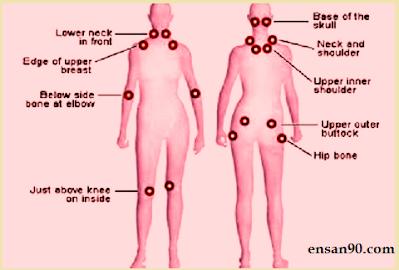 توعيه بمرض الفايبروميالجيا Fibromyalgia متلازمة الالم العضلي الليفي