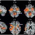 CIÊNCIA VIVA - O cérebro de um adepto de futebol