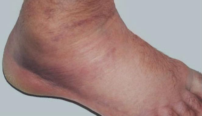 Image result for pembengkakan vena pada kaki