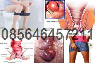 Jenis Obat Wasir Online Tanpa Resep Dokter Anorektal