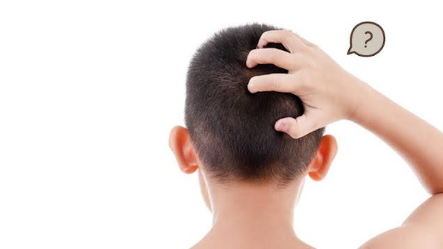 mengenal-gejala-infeksi-jamur-kulit-kepala