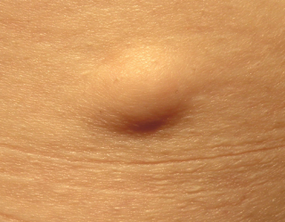 Homeopathic Treatment for lipoma