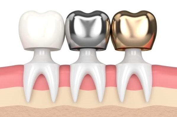 dental crowns types