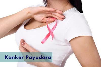 cara alami menyembuhkan kanker payudara