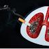 Berhenti Merokok !! Baca Ini Khusus Perokok