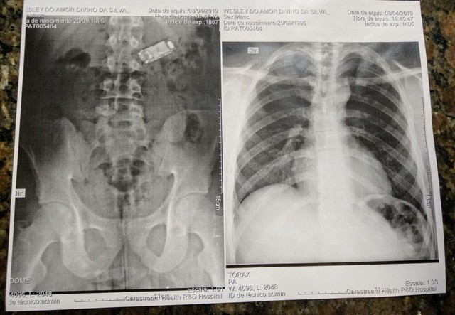 Preso engole celular e passa 4 dias com aparelho no estômago em MT