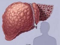 Chẩn đoán và điều trị bệnh xơ gan