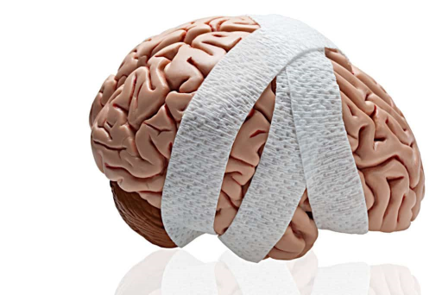 Mengenal Penyebab  Dan Informasi Umum Trauma Kepala Ringan