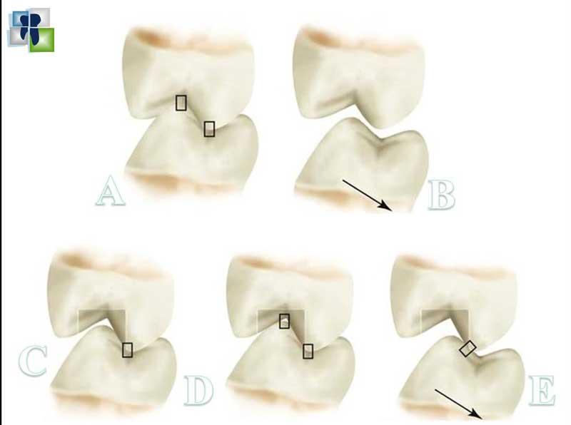 مفهوم الإطباق المستقر في ترميم الأسنان