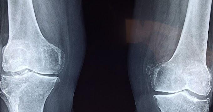 Osteoporoz(Kemik Erimesi) Nedir? Belirtileri,Nedenleri ve Tedavileri