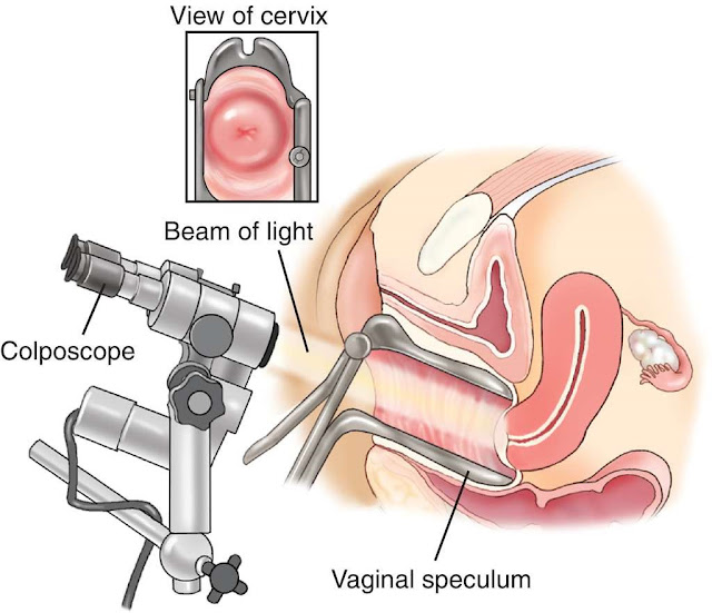 Why Is Colposcopy Performed