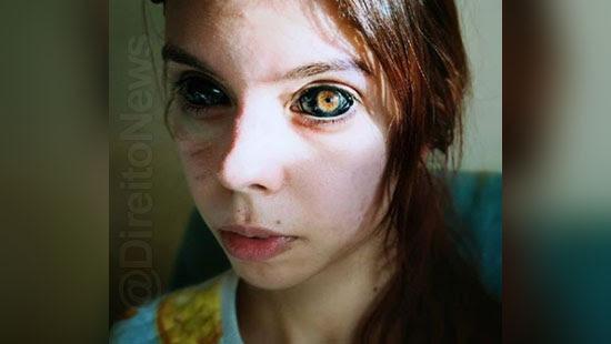 perder visao modelo processa tatuador oculares