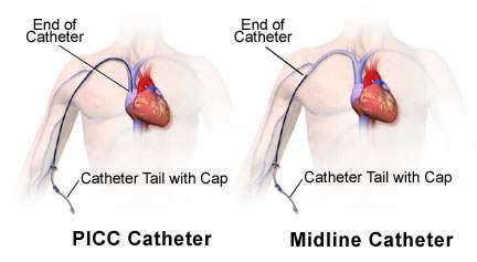 différence picc line midline vvc pansement infirmier