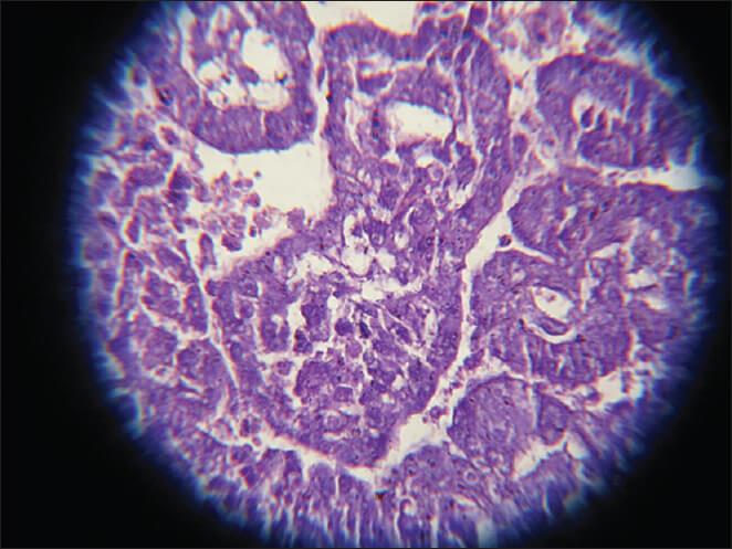 Apa Itu Germ Cell Tumor Sentiasapanas