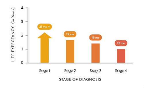 Prognosis of Stage 4 Mesothelioma 2