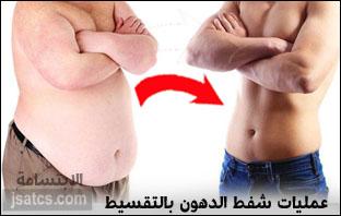 عمليات شفط الدهون بالتقسيط