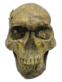 Bolinao Skull with Gold Teeth Ornamentation | Filipinos Centuries-old Practice of Dental Ornamentation [Balingasay Burial Site in Bolinao, Pangasinan]