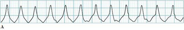 Monomorphic ventricular tachycardia ECG