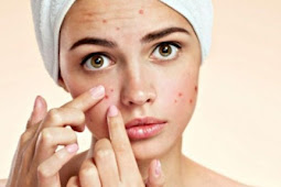 The Fact How To Get Rid of Acne With Honey, my god...