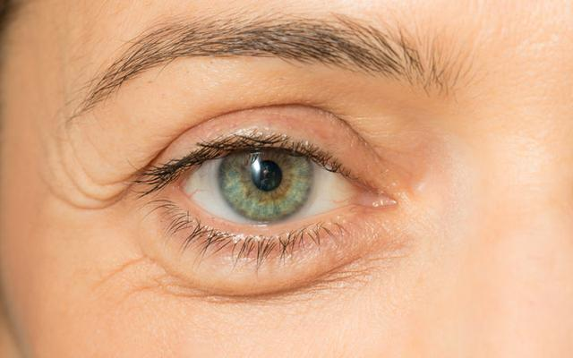 Puffy eyes: Causes | How to get rid of bags under eyes?