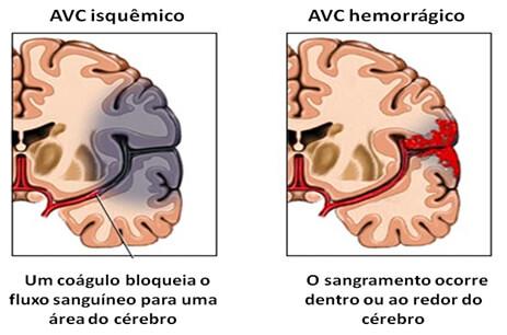 AVC isquêmico e AVC hemorrágico