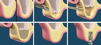 Sinus Grafting-dental-implants-nha-khoa-thuan-kieu