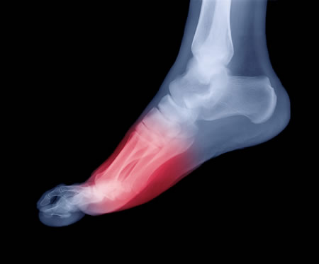 Common Foot and Toe Ailments