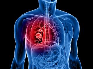 kelainan paru-paru