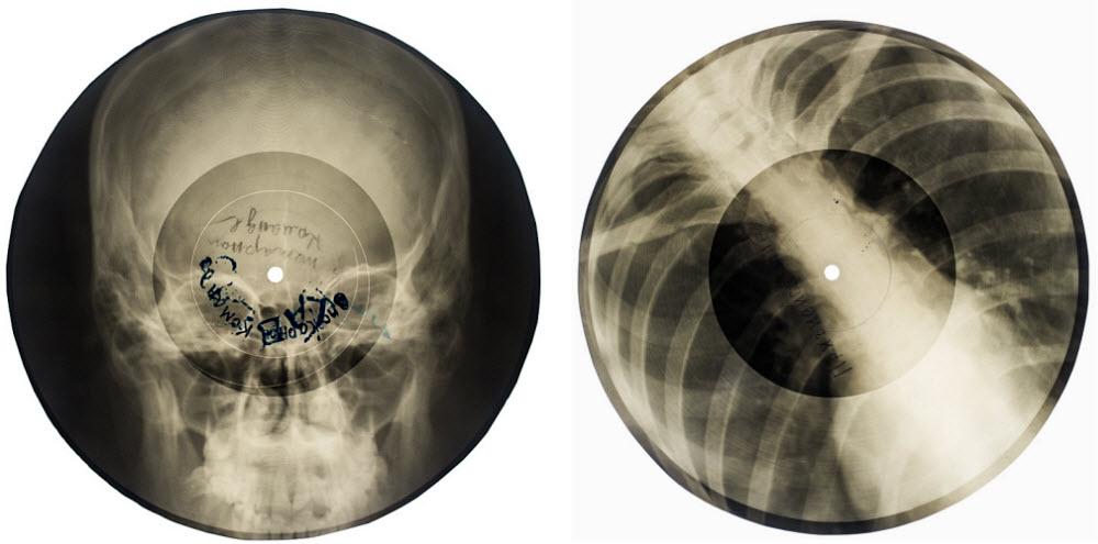 bone-record-1