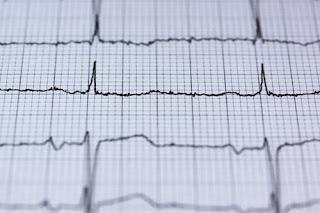 युवा सावधान खानपान से बढ़ रहे हैं हार्ट अटैक_Youth attacks are increasing due to heart attack_health tips_Health_tips_hindi