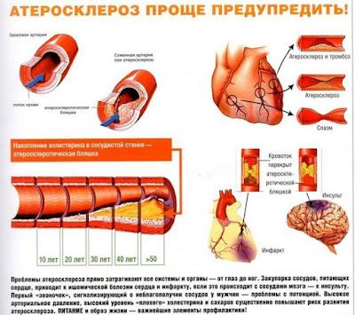 Лечение атеросклероза у пожилых людей