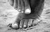 Tips Mengobati kuku cantengan kaki dan tangan