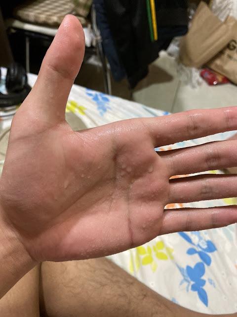 術前多汗的手