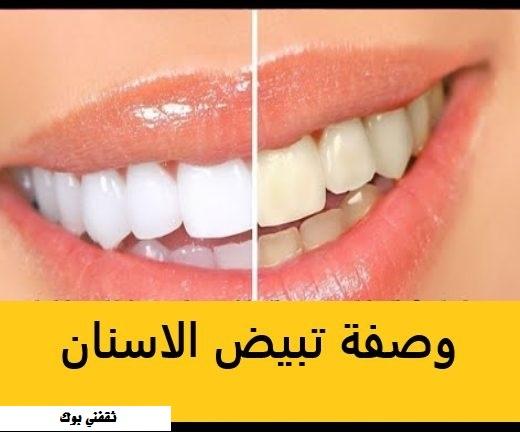 كيفية تبييض الأسنان طبيعي ؟